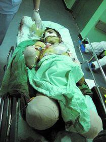 Cet adolescent de 17 ans a été amputé d'une jambe et d'un bras