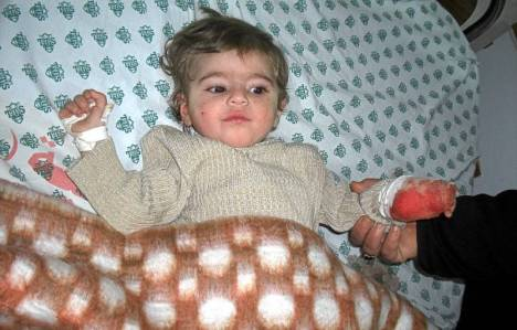 Joumana, neuf mois, a perdu sa main gauche et neuf des dix membres de sa famille